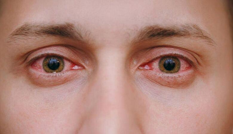 Photo of Μπήκε καπνός από φωτιά στα μάτια σου; Τα 4 βήματα που πρέπει να ακολουθήσεις
